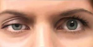 علاج جفاف العين بشكل طبيعي في المنزل